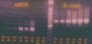 Homepage-Image-3-RT-PCR-jpeg-high-web
